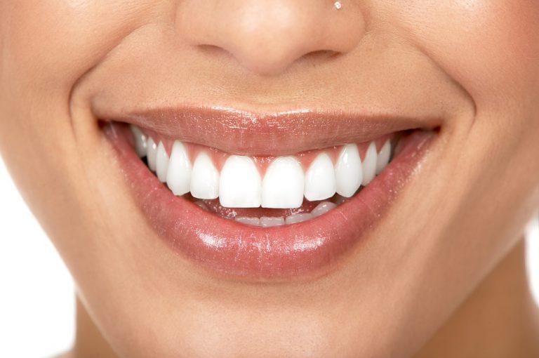 Technique de blanchiment dentaire - Boost