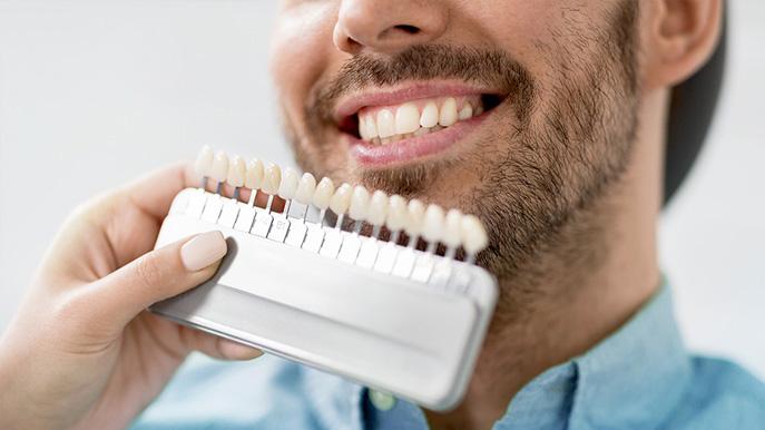 Facette dentaire - Procédure