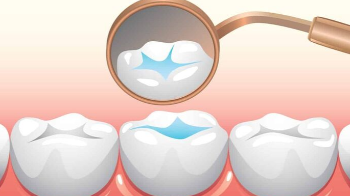 Scellant dentaire - Conseils supplémentaires