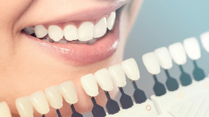 Different types of dental veneers