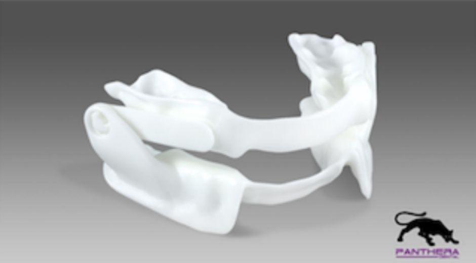 mandibular advancement orthosis